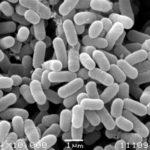 免疫力を整える乳酸菌とは?